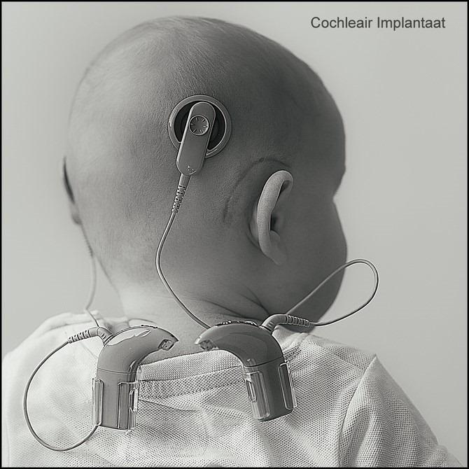 Cochleair Implantaat Foto Cochleair implantaat bij baby's Foto Oren om te Horen Foto Werking Cochleair Implantaat Foto Zendspoel Foto Elektronisch Implantaat Foto Jaylano