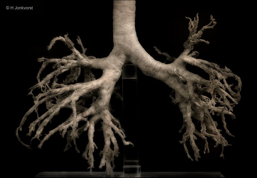 Real Human Bodies, Real Human Bodies exhibition, Real Human Bodies Zwolle, kijken naar lijken, anatomie van het menselijk lichaam, zo werkt het lichaam, Bronchiaalboom,  bronchiën, luchtpijpvertakking