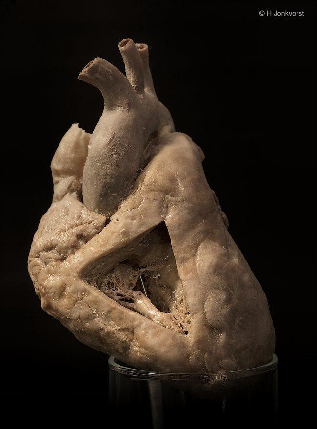 Real Human Bodies, Real Human Bodies exhibition, Real Human Bodies Zwolle, kijken naar lijken, lijken kijken, anatomie van het menselijk lichaam, menselijk hart, werking hartkleppen, hartklep, kleppenstelsel, klepperdeklep