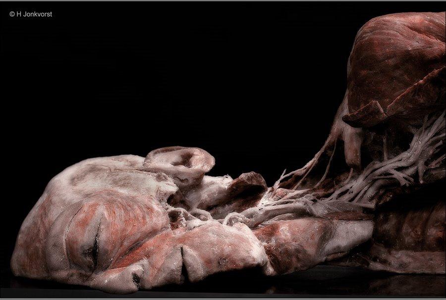 Real Human Bodies, Real Human Bodies exhibition, Real Human Bodies Zwolle, kijken naar lijken, lijken kijken, anatomie van het menselijk lichaam, zo werkt het lichaam, lichaam opgeven voor wetenschap
