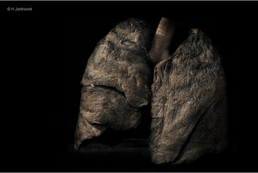 Real Human Bodies, Real Human Bodies exhibition, Real Human Bodies Zwolle, kijken naar lijken, lijken kijken, anatomie van het menselijk lichaam, zo werkt het lichaam, over je longen, rokerslongen, zwartgerookte longen