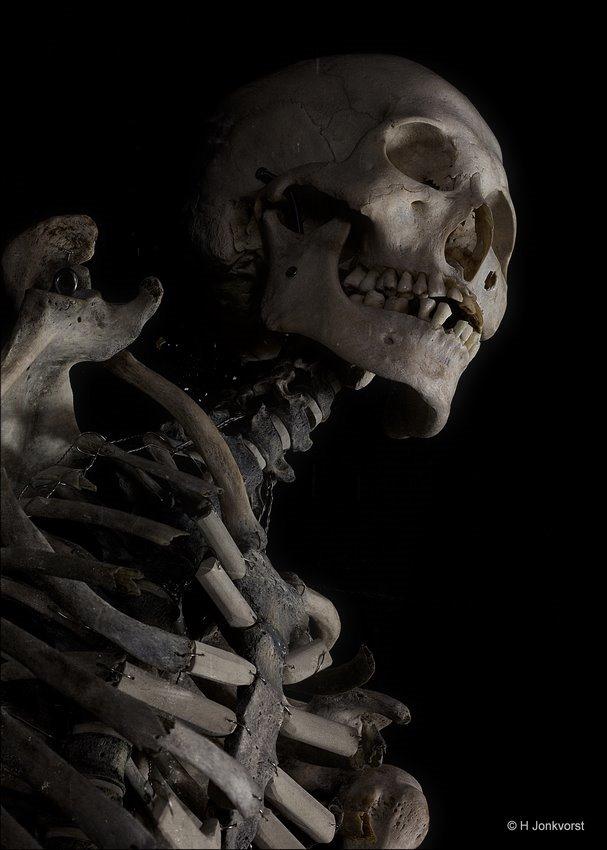 menselijk skelet, gebroken ribben, botten van de mens, beendergestel, Real Human Bodies, Real Human Bodies exhibition, Real Human Bodies Zwolle, kijken naar lijken, lijken kijken, anatomie van het menselijk lichaam